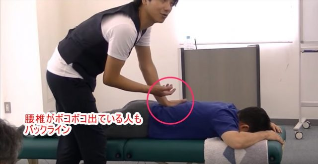 腰椎がボコボコ出ている人もバックライン
