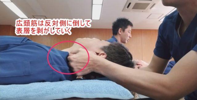 広頚筋は反対側に倒して表層を剥がしていく