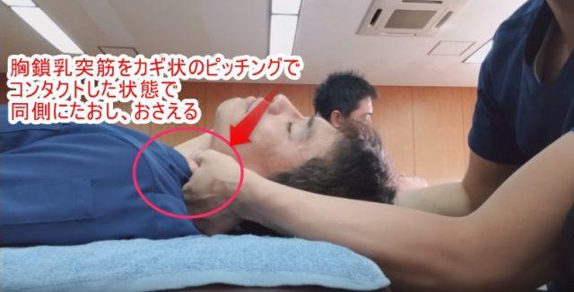 胸鎖乳突筋をカギ状のピンチングでコンタクトした状態で同側に倒し、おさえる